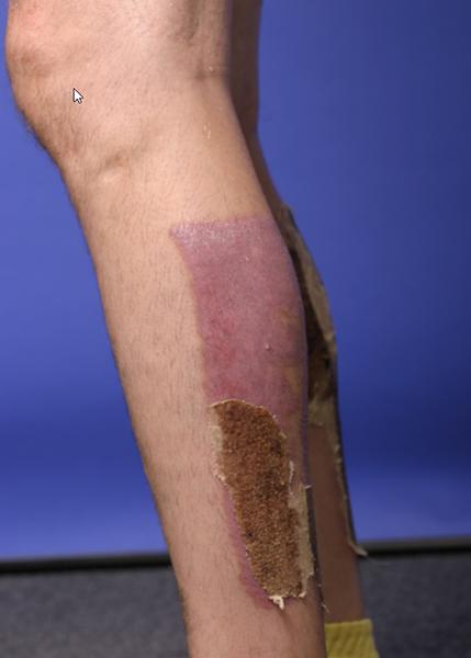 leg burn injuries