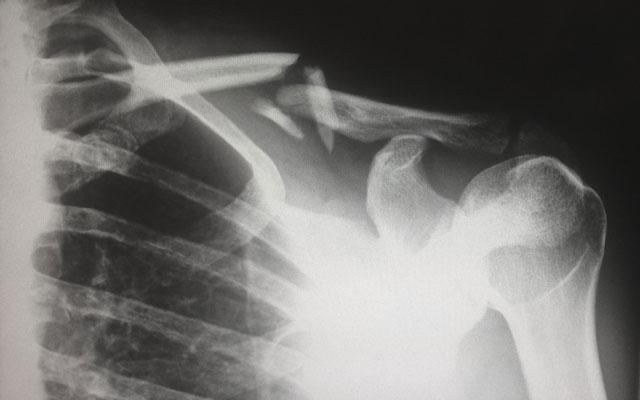 xray of shoulder injury