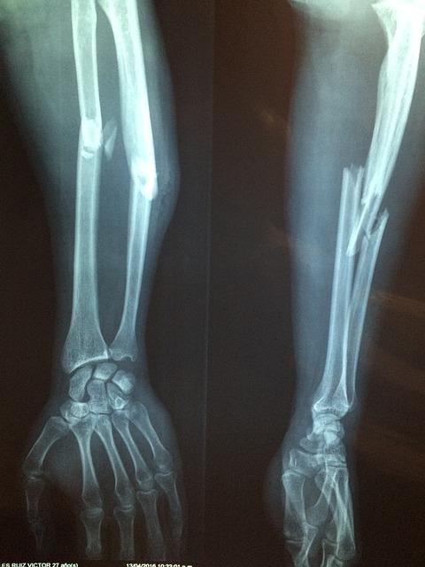 fractured arm bone