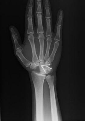 wrist injury after ship collision